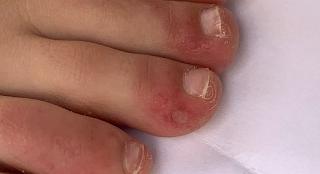 O que são os 'dedos de covid'?