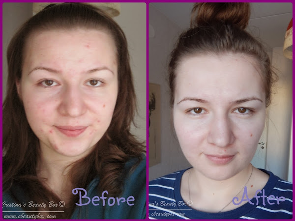 My Acne Journey and How I Cleared Up my Skin (Steps to Clear Skin- Part 3}
