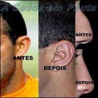 Cirurgia plástica estética de orelhas e de nariz