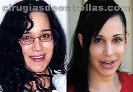 Nadya Suleman antes y despues
