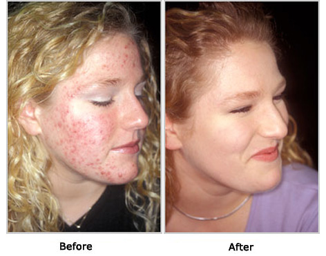 Acne Free Before and After