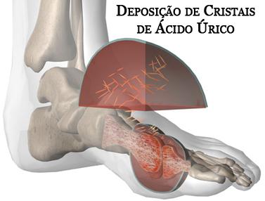 acido urico en rodilla magnesio supremo e acido urico dieta para acido urico alto pdf
