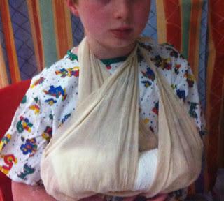 Gallery-son-broken-arm-accident