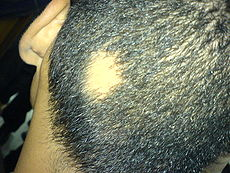 spot baldness-treatment and prevention