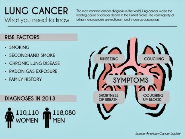 All about Lung Cancer Causes and Cures.