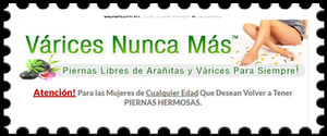 No mas varices