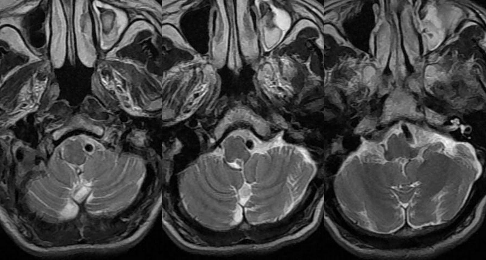 Dr Balaji Anvekars Neuroradiology Cases Vertebral Artery