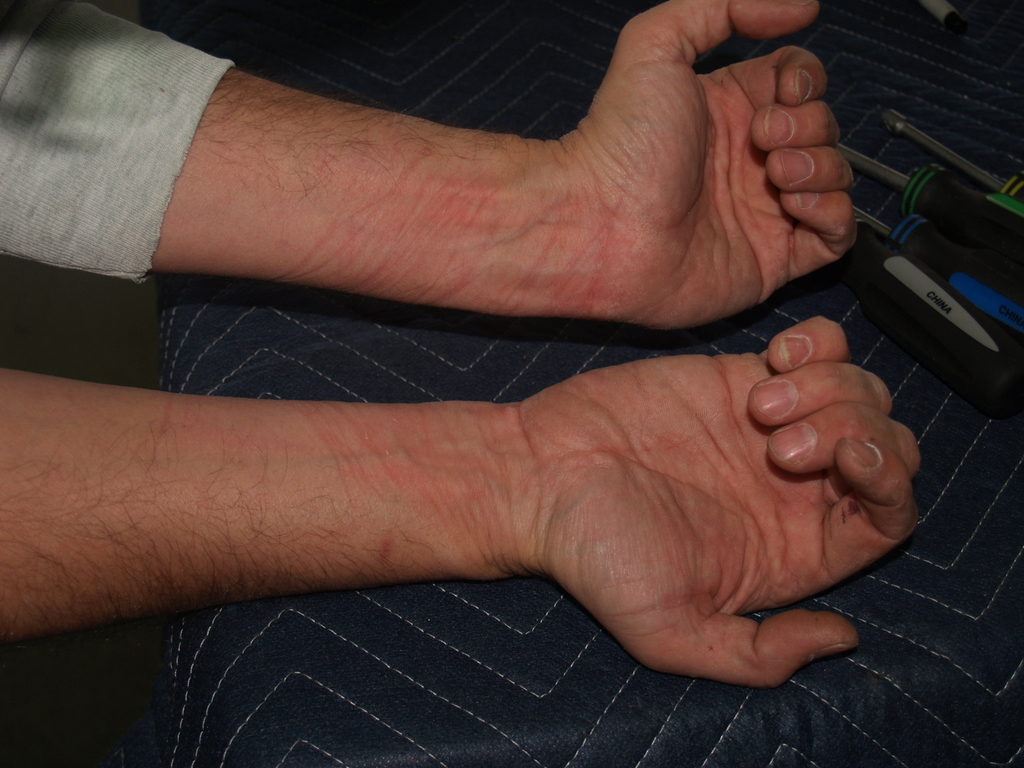 Watch marks on wrist - It Wasn T An Easy Fight As The Marks On My Wrists Show It Looks Almost As If I D Spent Twenty Minutes Trying To Slash My Wrists With The Wrong Side Of The