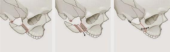 Prosedur reduksi tulang pipi di Wonjin