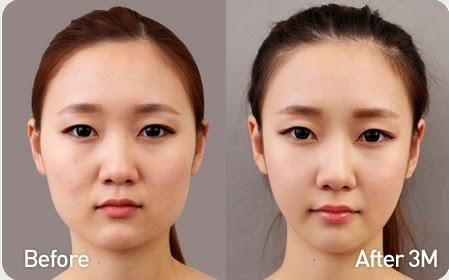 Foto sebelum dan sesudah koreksi tulang wajah-2