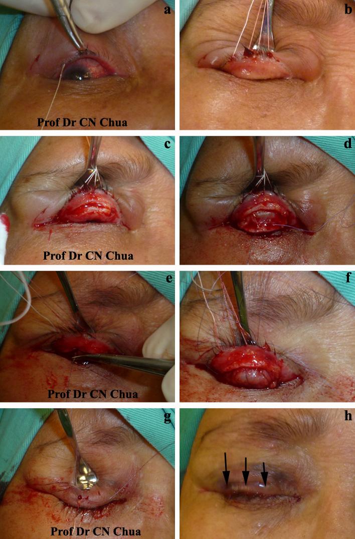Eyelid Surgery By Prof Dr Cn Chua January 2012