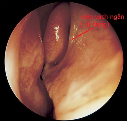 điểm mạch kisselbach