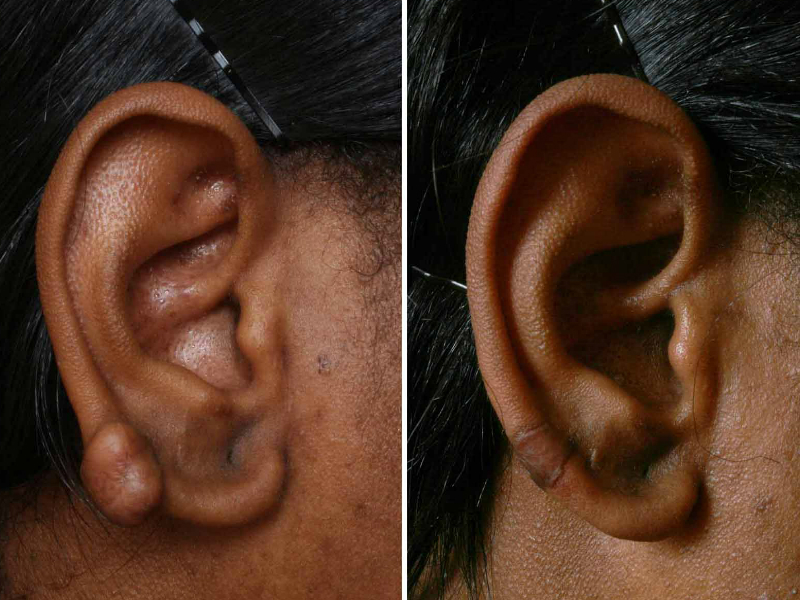 treating keloids with steroids