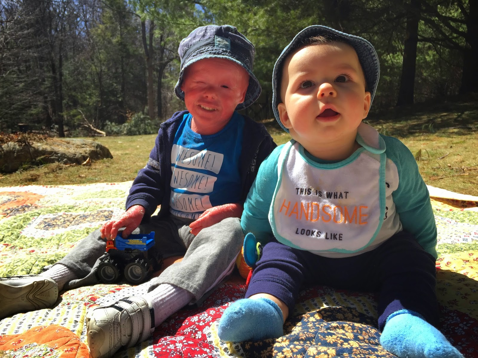 Evan, who has Harlequin Ichthyosis, with his brother