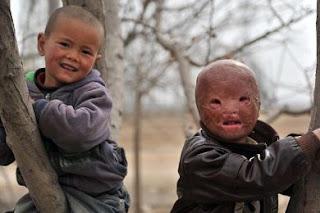 طفل صيني تحول وجهه إلى قناع جلدي بسبب حادث حريق