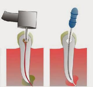รักษารากฟัน + ครอบฟัน ราคา 19,400 บาทถ้วน
