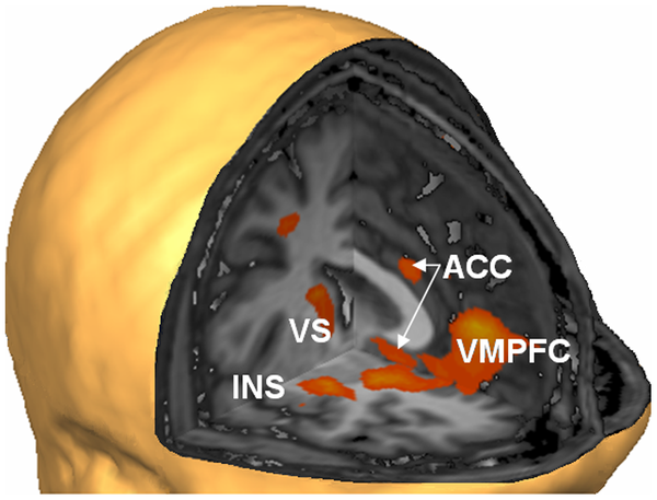 ... Your Own Brain Emotion Networks w/ Real Time fMRI Neurofeedback