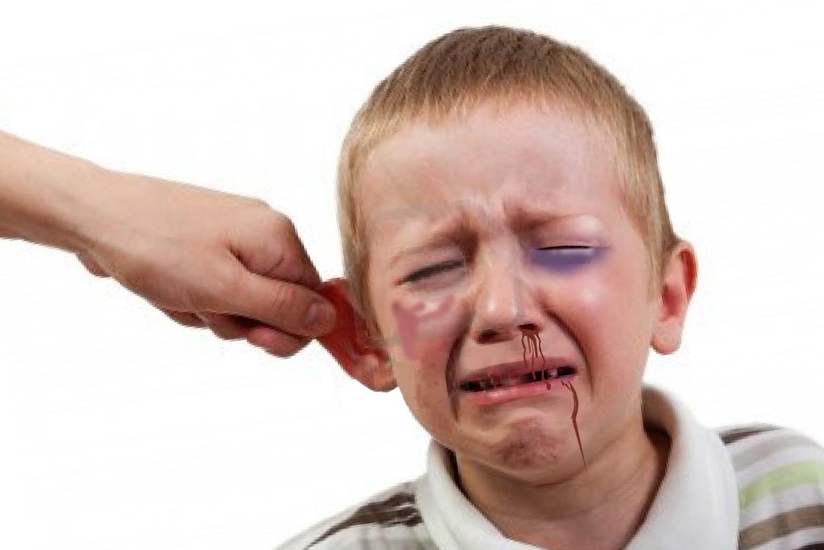 imagenes de maltrato infantil: