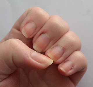 Gel manicure removed