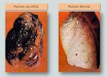 Cuestionario COPD-PS. ¿Quieres descubrir si tienes una enfermedad pulmonar?. Pincha en la imagen.