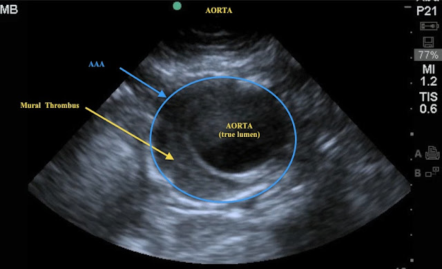 Emory emergency ultrasound abdominal pain gallstones or for Aortic mural thrombus