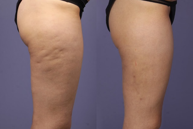 how-to-reduce-cellulite