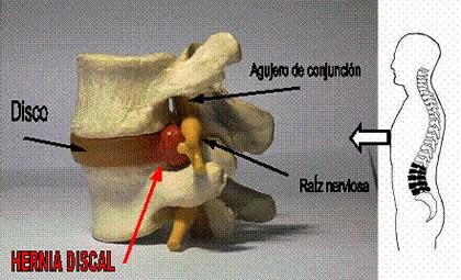 Donde curan la trombosis de las extremidades inferiores
