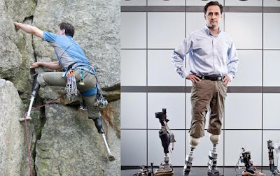 Lima Kisah Manusia Ganti Organ Tubuh Dengan Suku Cadang Robot di Dunia