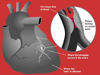 Picture explaining how a heart attack occurs