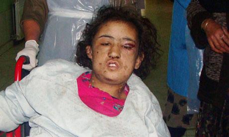 garota torturada no Afeganistao