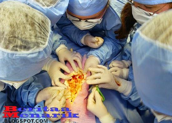 7 Hal Aneh Yang Terjadi Setelah Operasi