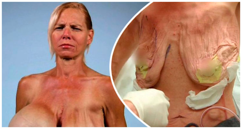 Aumento no tamanho de uma massagem de peito