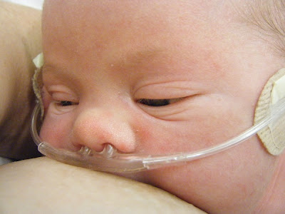 Breastfeeding in NICU