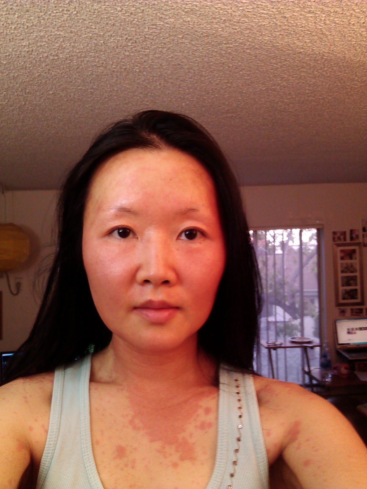can prednisone cause face puffiness