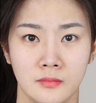 3 bulan sesudah operasi plastik hidung