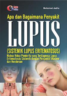 Apa dan Bagaimana Penyakit Lupus ? (Sistemik Lupus Eritematosus)