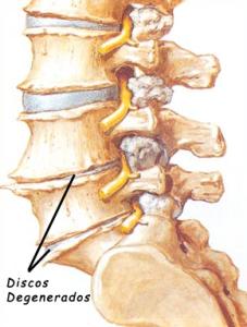 La gimnasia para la columna vertebral después de la desaparición de la hernia intervertebral