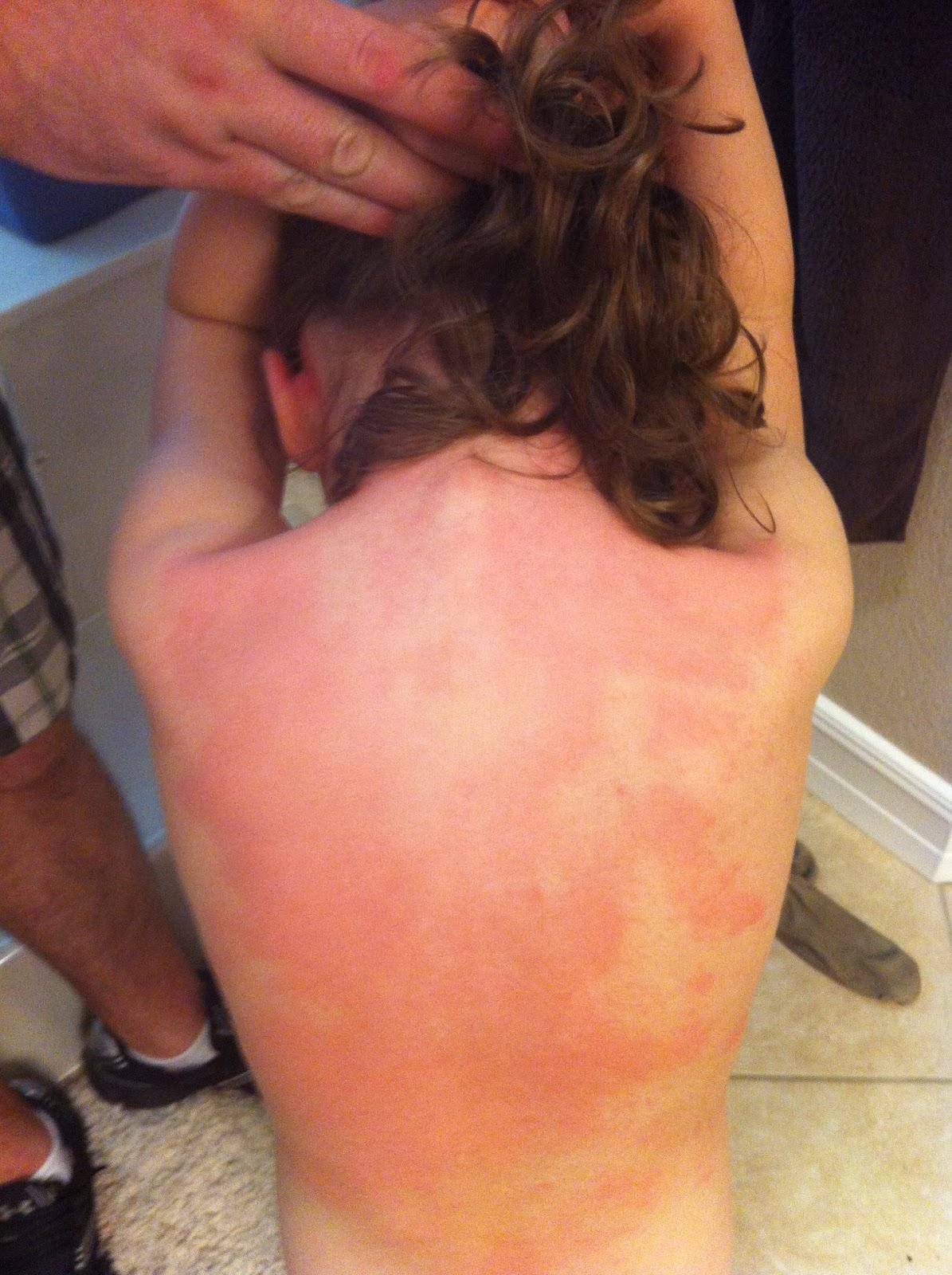 Fire Ant Allergy   AAAAI