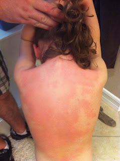 Fire Ant Bite Allergic Reaction Hives in the Kitchen: ...