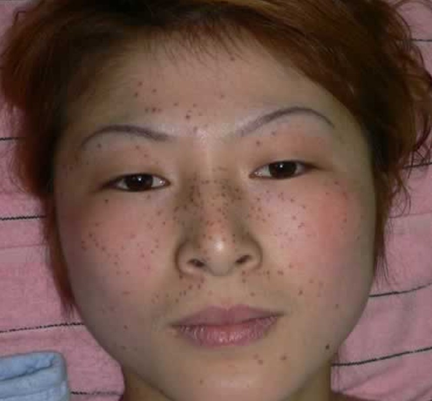 They Are Small, Round Areas Of Pigmentation And Range In Color From Tan To Light  Brown. Age Spots Are Flat To The Skin.