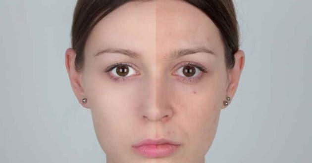 La pigmentación del bronceado sobre la persona como librarse