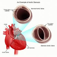 What is Rheumatic Fever Caused By