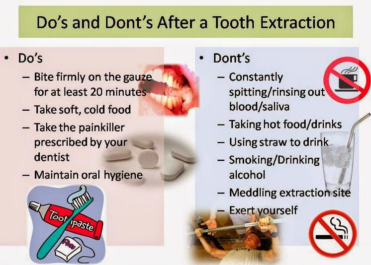 When Can I Chew Food After Tooth Extraction