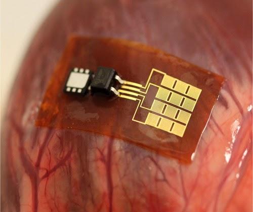 心拍数モニタ、ペースメーカなどの体内デバイスに電力を供給するのに十分な電気を生成する小型の圧電インプラントを作成した。