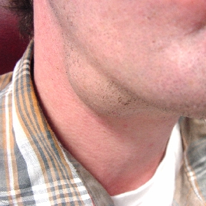 how to stop over sebaceous glands