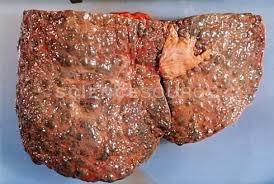 gastric hernia symptoms