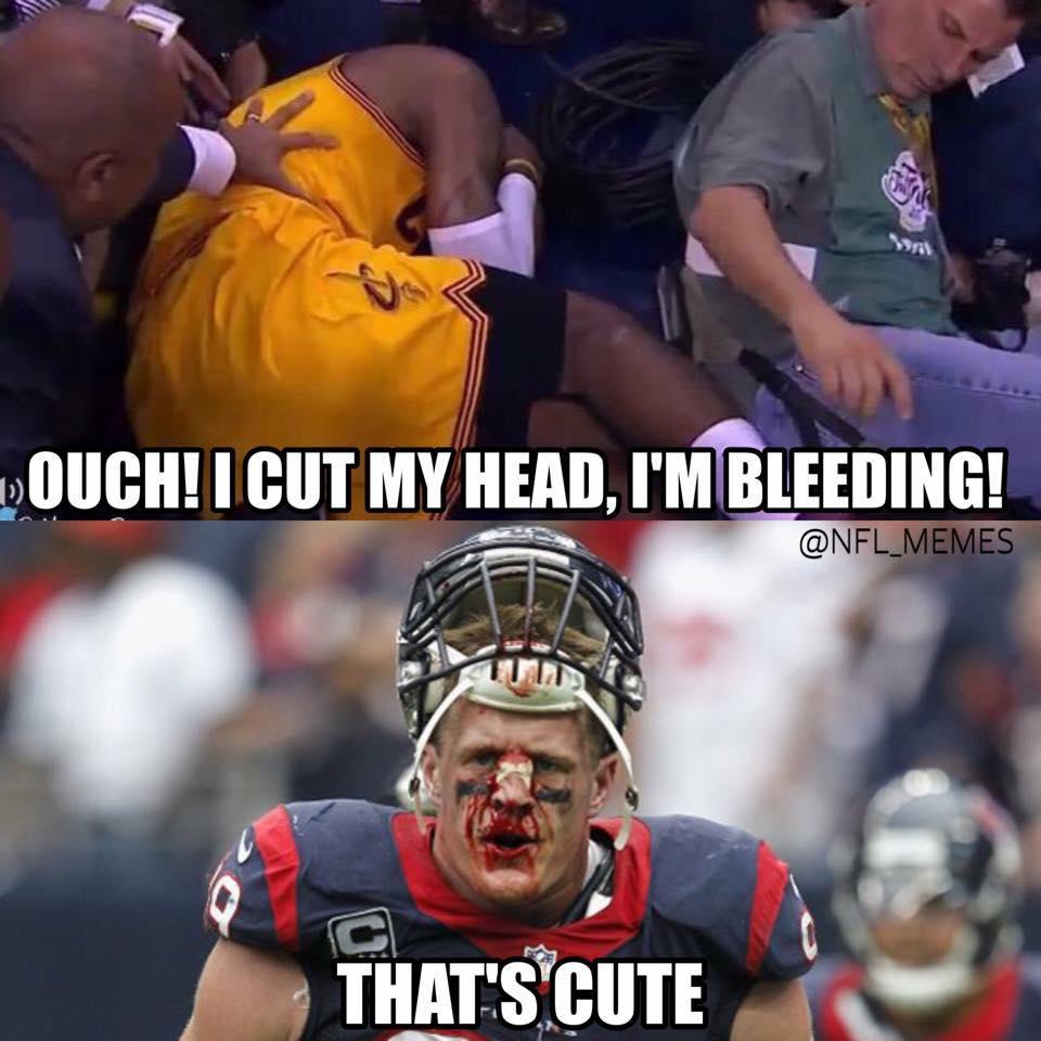 ouch! I cut my head, I'm bleeding! (LeBron James) that's cute (jj watt)
