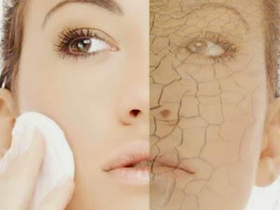 Cara mengatasi kulit kering dan mengelupas