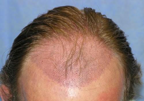 Cosmetic Surgery-Hair Transplant