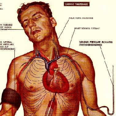 El tratamiento sheynogo del nervio por los métodos públicos